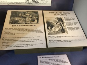 Migraines, Visual Illusions and Alice in Wonderland Syndrome